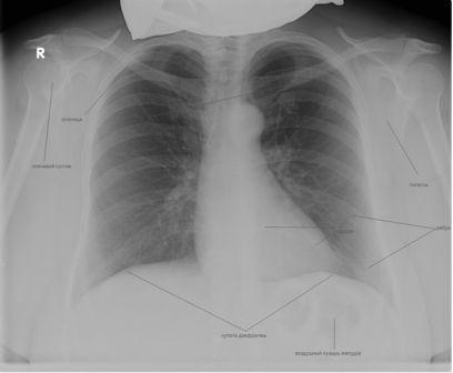 что показывает рентген легких