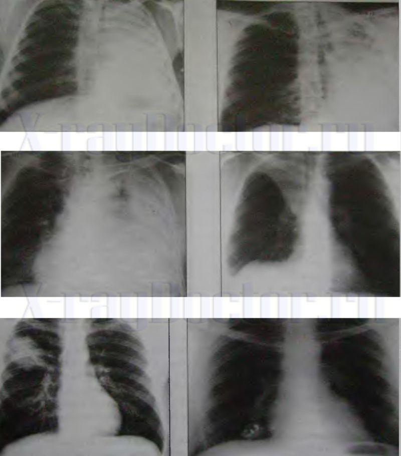 Снимки рентгена различных видов затемнений в легких