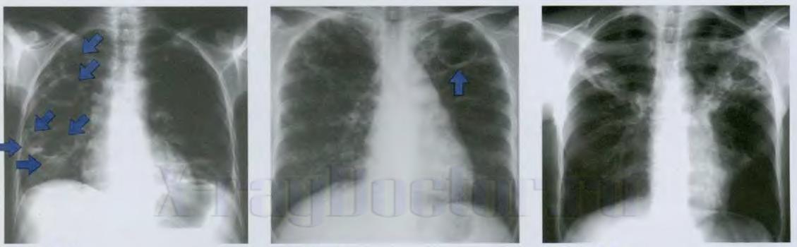 абсцесс легкого на рентгенограмме