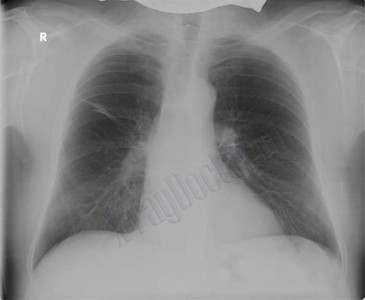 бронхиальная астма рентген снимок