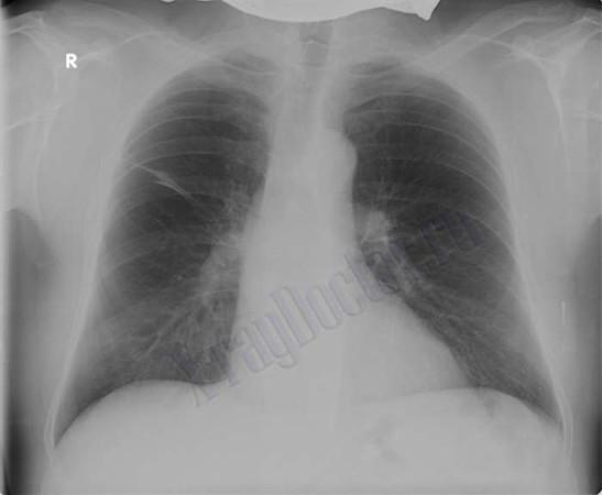 Рентген при бронхиальной астме