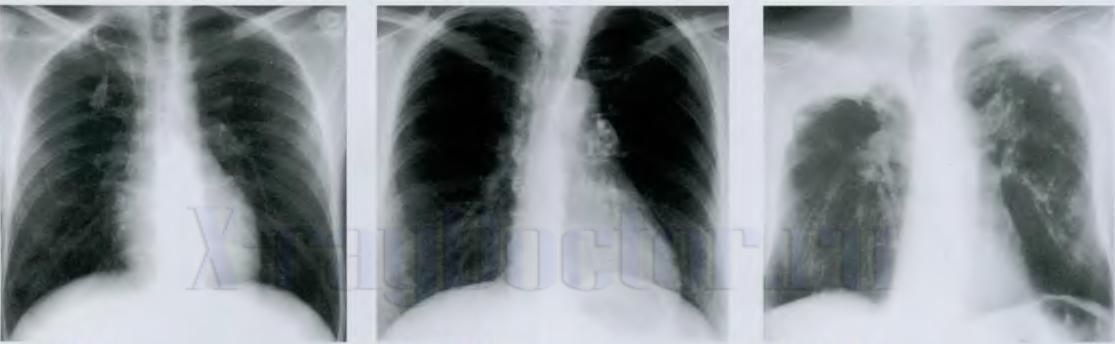 белые пятна на рентгене легких при туберкулезе