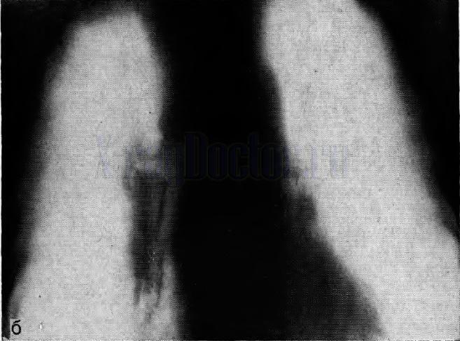 центральный рак левого легкого на томограмме корней