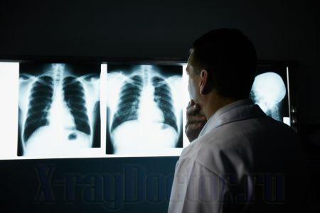 Отличия рентгена от флюорографии