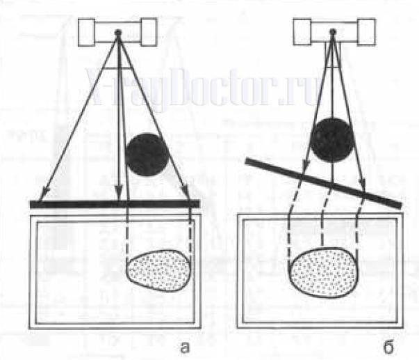 искаженное изображение шара при исследованиит рентгеновскими лучами