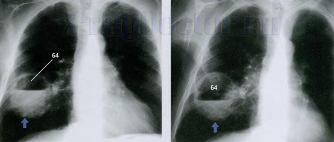 Рентген легких при пневмонии признаки воспаления фото снимков как выглядит пневмония на рентгене