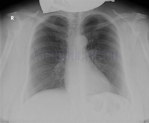 нормальная рентгенограмма легких