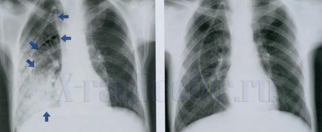 Рентген легких при пневмонии признаки воспаления фото снимков рентген снимок легких при пневмонии