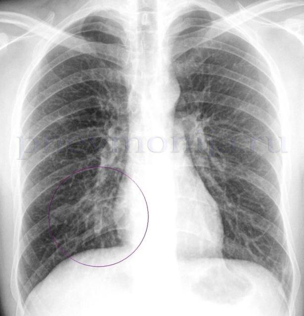 нижнедолевая пневмония на рентгене легких в прямой проекции