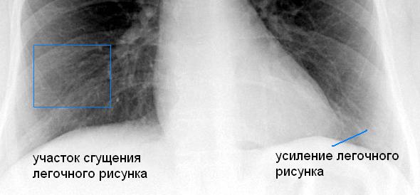 рентген легких курильщика с участками сгущения и усиления рисунка