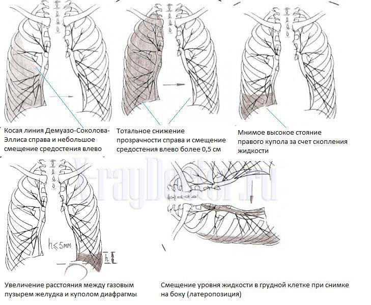 Схема: рентгенологические