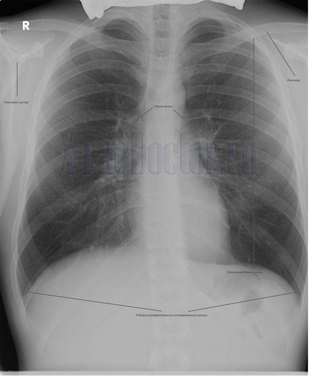 снимок с описанием основных рентгеновских структур