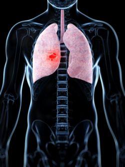 злокачественная опухоль легкого на рисунке