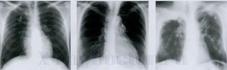 Foto rentgenogramm grudnoj kletki pri tuberkuleze