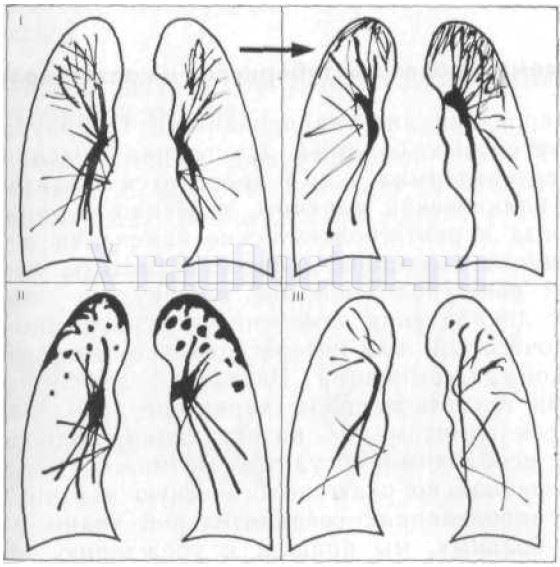 Схема диссеминированного туберкулеза