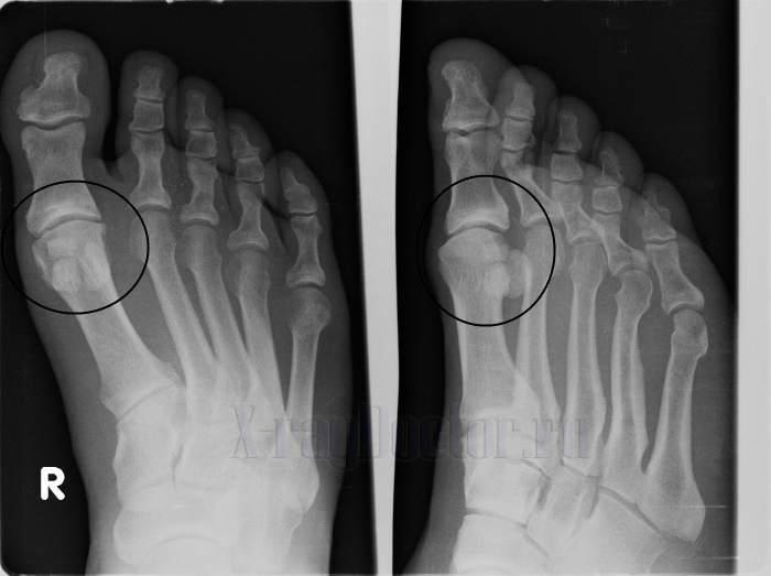Рентгеновский снимок артроза 1 пальца стопы