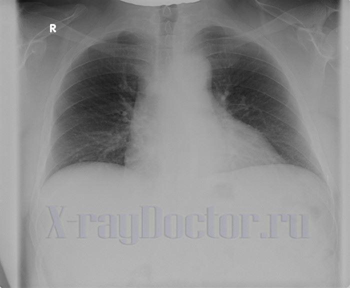 флюорография пациента с повышенной массой