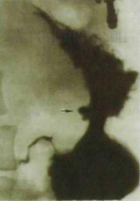 фото рентгенограммы желудка