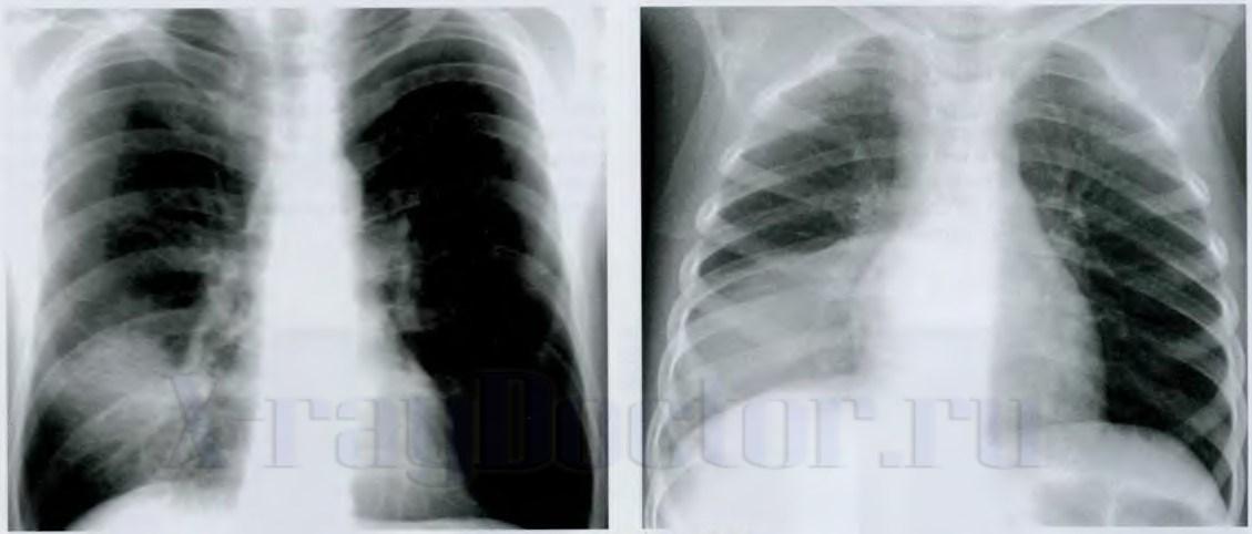 Фото рентгенограмм при локальном пневмотораксе в нижней доле справа
