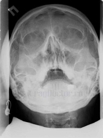 Рентген аллергического гайморита
