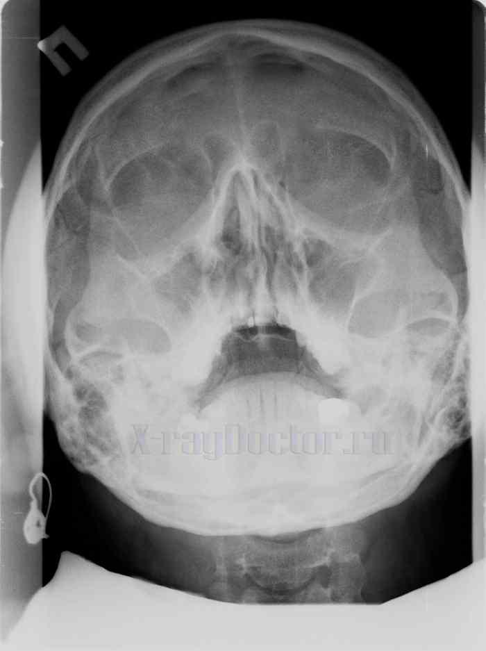 гиперплазия слизистой пазухи