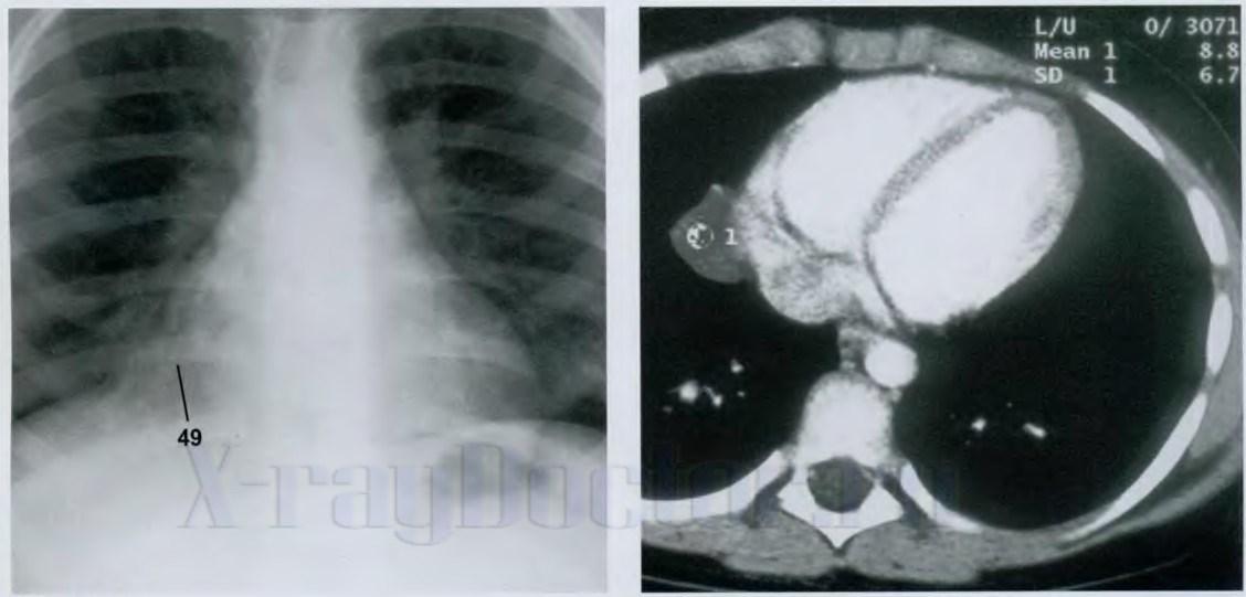 патологическая киста перикарда на рентгене