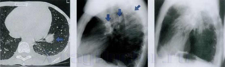 признак туберкулеза на снимке в верхней доле правого легкого