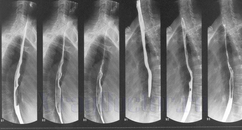 рентгенограммы исследования желудка с барием