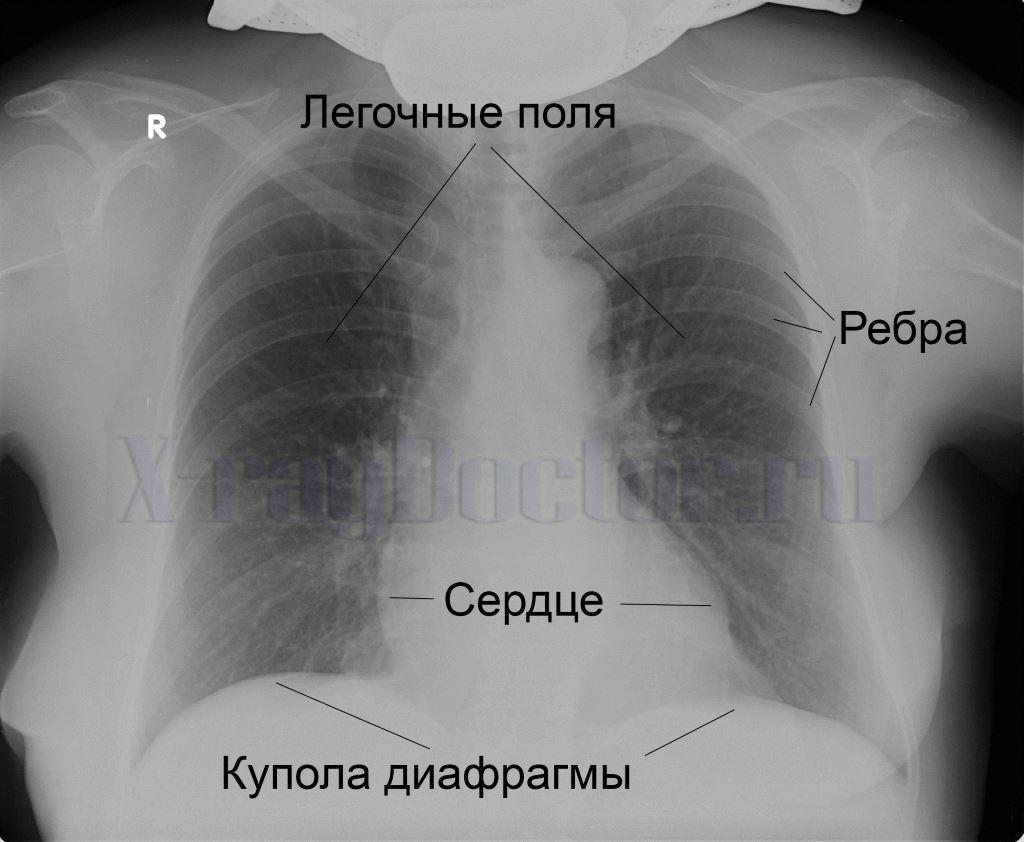 рентген снимок здоровых легких