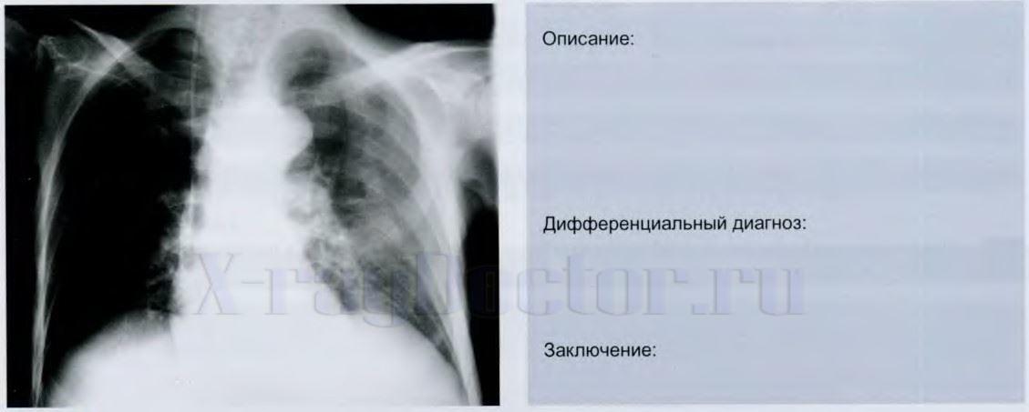 проявка рентгеновских снимков