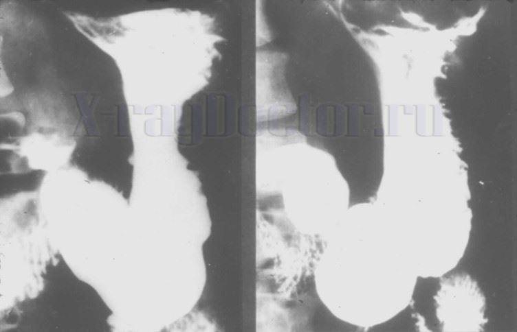 Рентгенография желудка с барием при вертикальном положении пациента