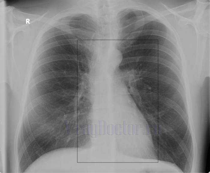 Снимок сердца при эмфиземе