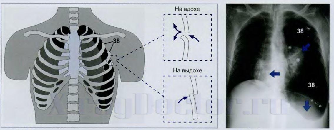 Схема и рентгенограмма клапанного скопления воздуха в плевральной полости