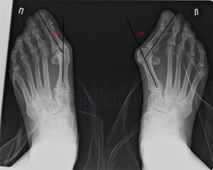 Вальгусная деформация 1 пальца
