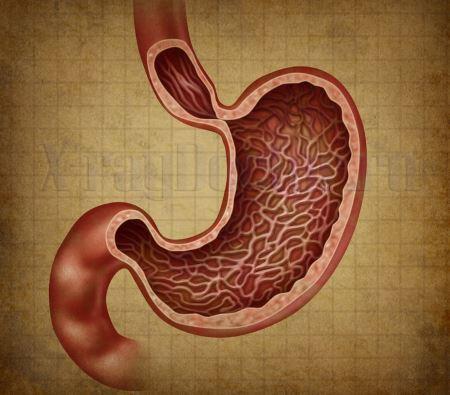 Рентген желудка показывает