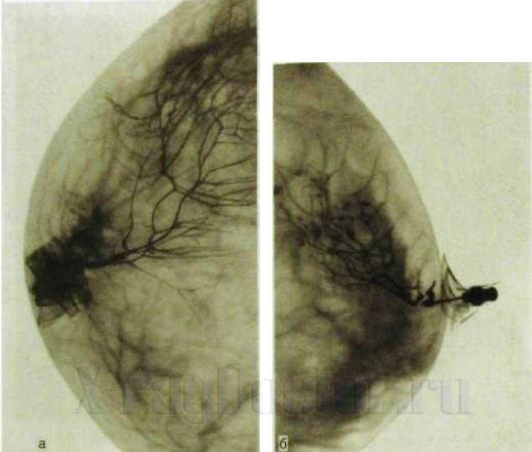 протокол маммографии образец - фото 10
