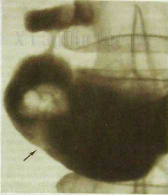 крупный аденоматозный полип