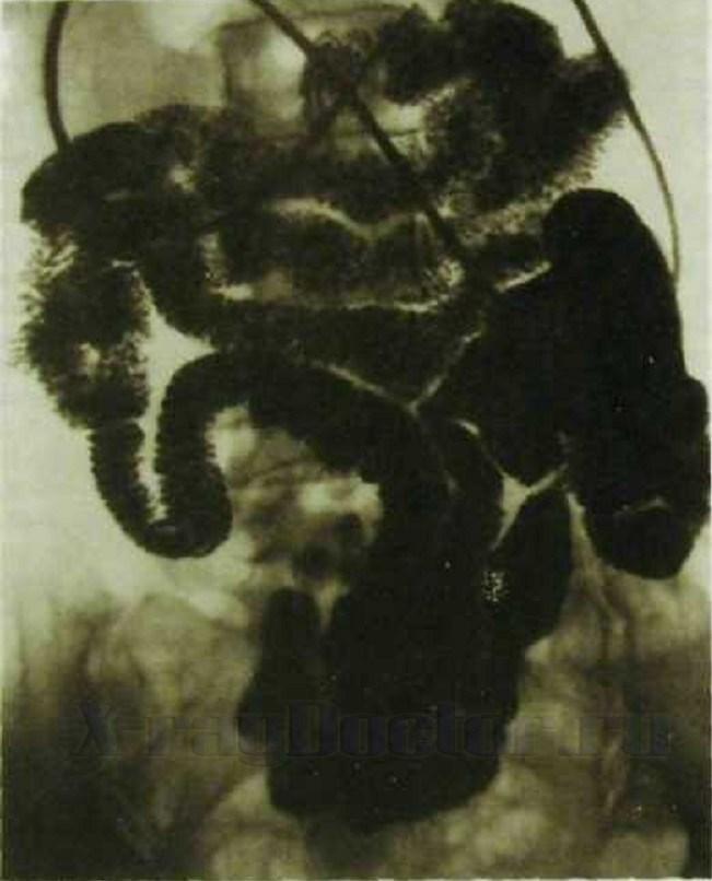 фото рентгена кишечника