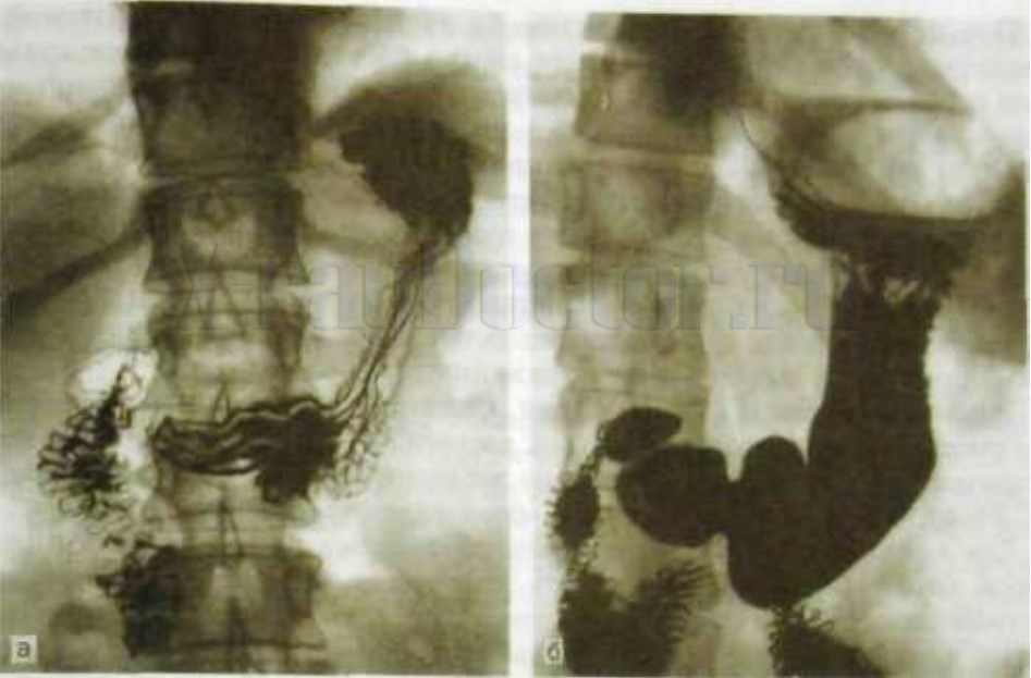 Рентгенография желудка при малом и тугом наполнении