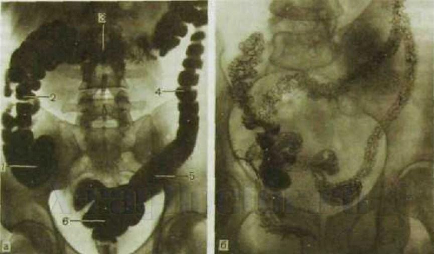 рентгенография кишечника (толстая кишка)