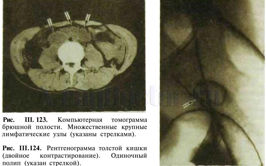 рентгенограмма толстой кишки и КТ брюшной полости