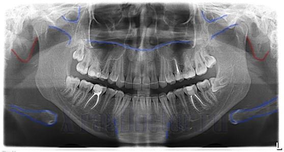 гранулирующий периодонтит на рентгене