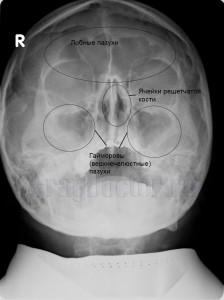 rentgenografija pridatochnyh pazuh nosa