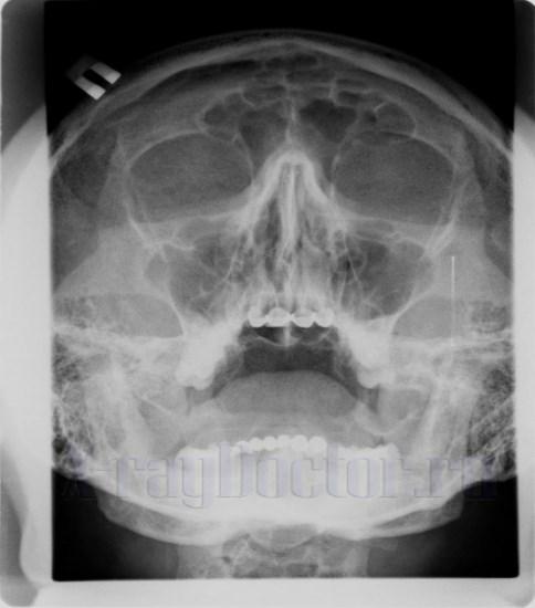 rentgenogramma
