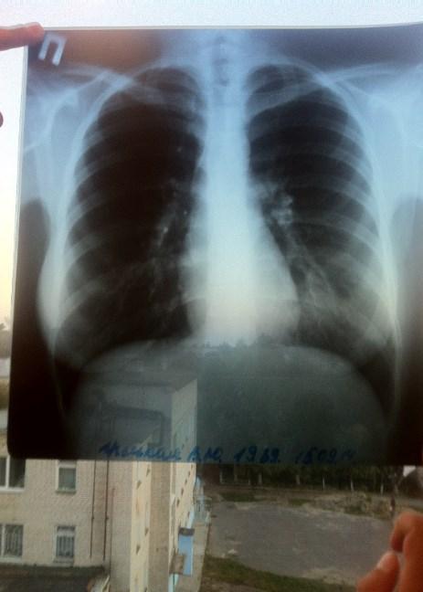 rentgenovskij snimok