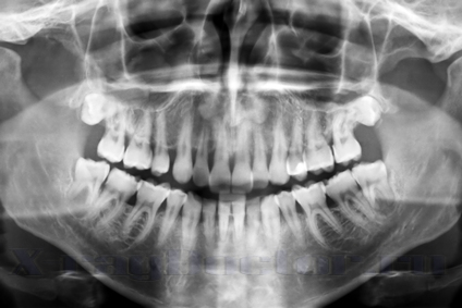 Dental scan x-ray of a 35 year old man.