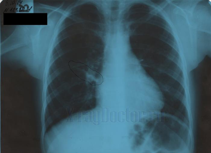 Рентген легких при перисциссурите