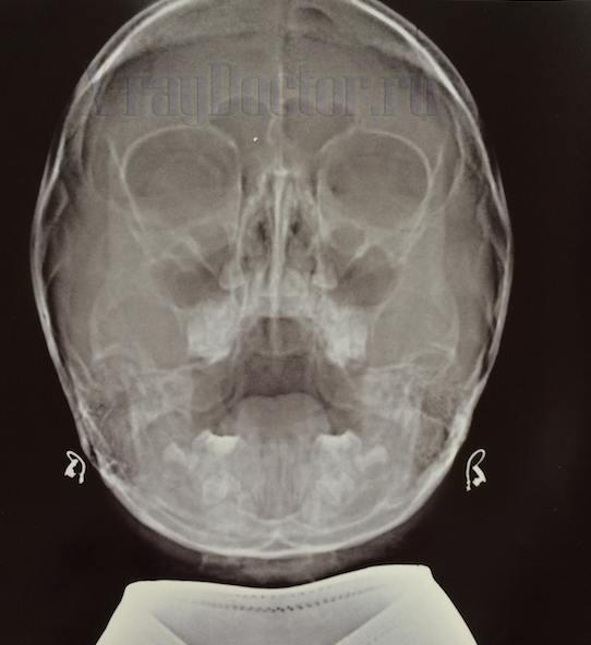 Рентген снимок придаточных пазух в норме