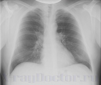 rentgenogramma legkih 1