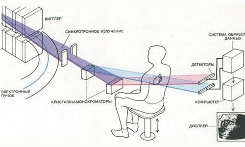 Получение рентгеновского изображения